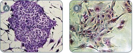 EpiCult™-B (Mouse) Cell Cultures Display Decreased EMT