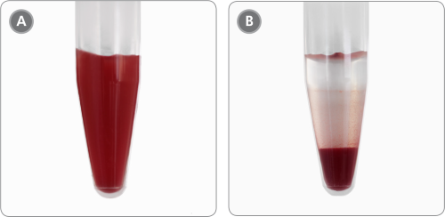 Sample Appearance Before and After Incubation