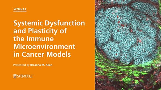 Systemic Dysfunction and Plasticity of the Immune Macroenvironment in Cancer Models