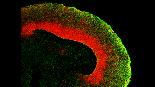 Brains in a Dish: Using Cerebral Organoids to Study Human Brain Development and Disease