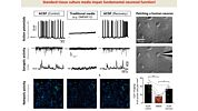 The Road to Functional Human Neuronal Circuits in Vitro