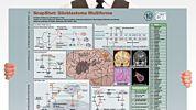 SnapShot: Glioblastoma Multiforme