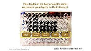 Considerations to Streamline the Flow Cytometry Crossmatch (FCXM) Assay