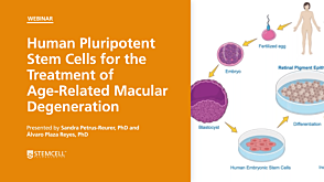Human Pluripotent Stem Cells for the Treatment of Age-Related Macular Degeneration
