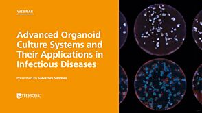 Advanced Organoid Culture Systems and Their Applications in Infectious Diseases