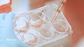 How to Transition hPSCs into mTeSR™ Plus: Plate Coating