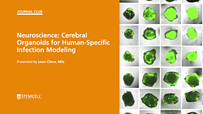STEMCELL Journal Club: Cerebral Organoids for Human-Specific Infection Modeling