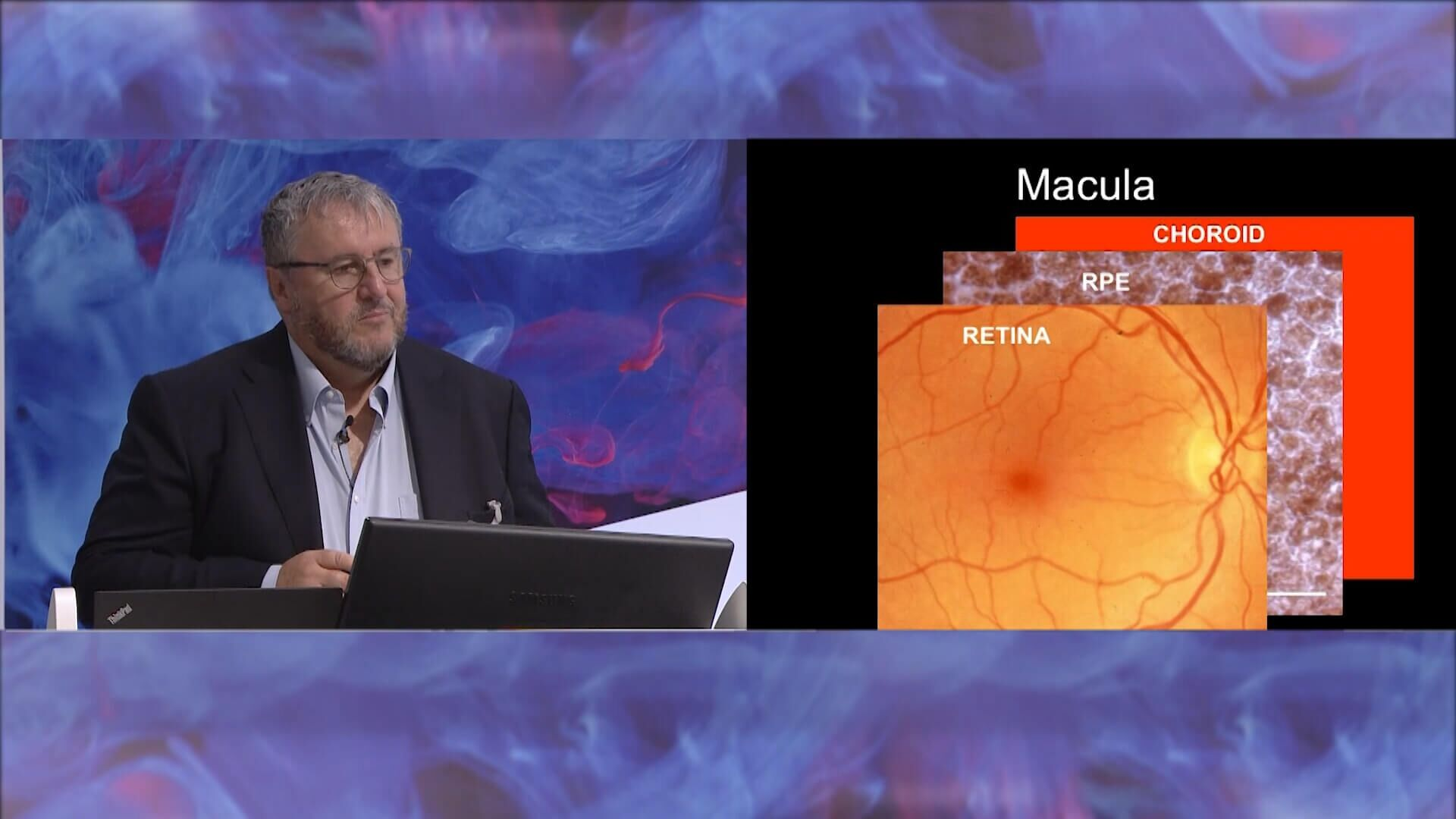 Nature Research Round Table: Retinal Cell Therapy Using Human Embryonic Stem Cells