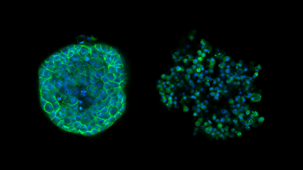 Drug Screening and Phenotypic Analysis in a Microwell-based 3D Cell Culture System