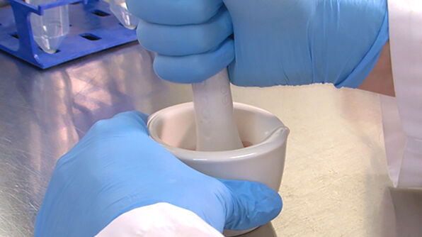 How to Isolate Mesenchymal Stromal Cells (MSCs) from Mouse Compact Bone