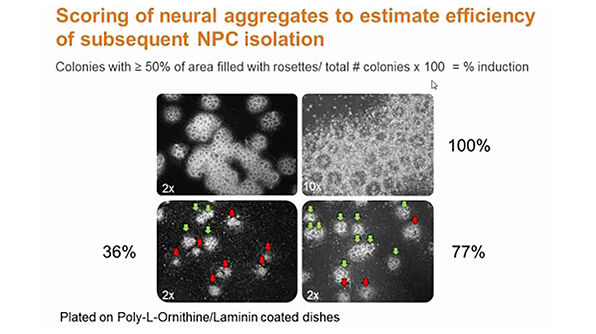 Neural Stem Cell Culture Systems - Neurosphere vs. Adherent Monolayer Culture