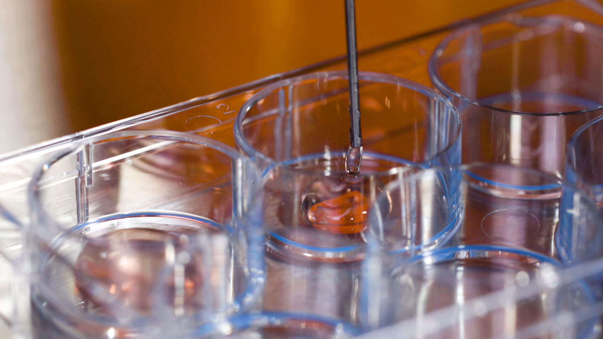How to Set Up the CFU Assay for Custom Hematopoietic Training Courses Using SmartDish™