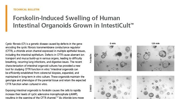 Forskolin-Induced Swelling of Human Intestinal Organoids Grown in IntestiCult™