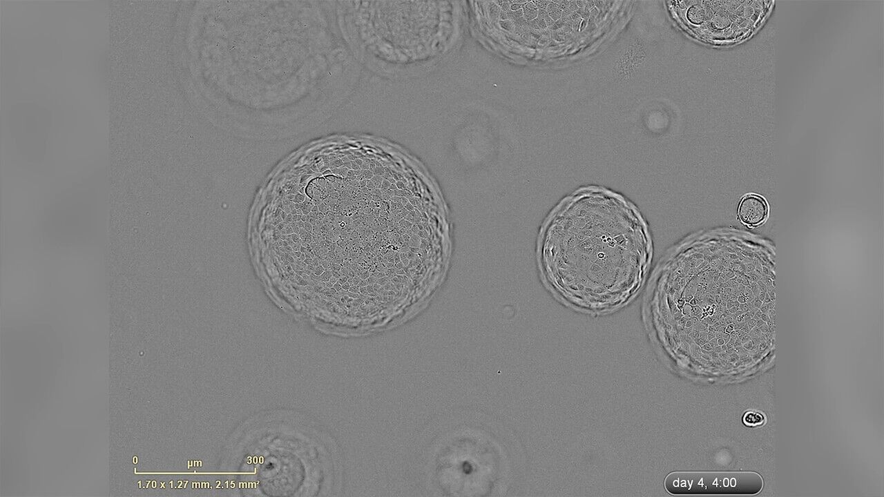 Growth of Liver Organoids in HepatiCult™ Culture Medium: Under a Microscope