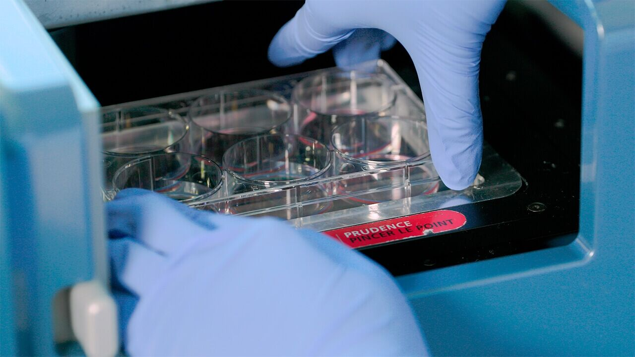 How to Standardize and Automate Hematopoietic Colony Counting in CFU Assays with STEMvision™