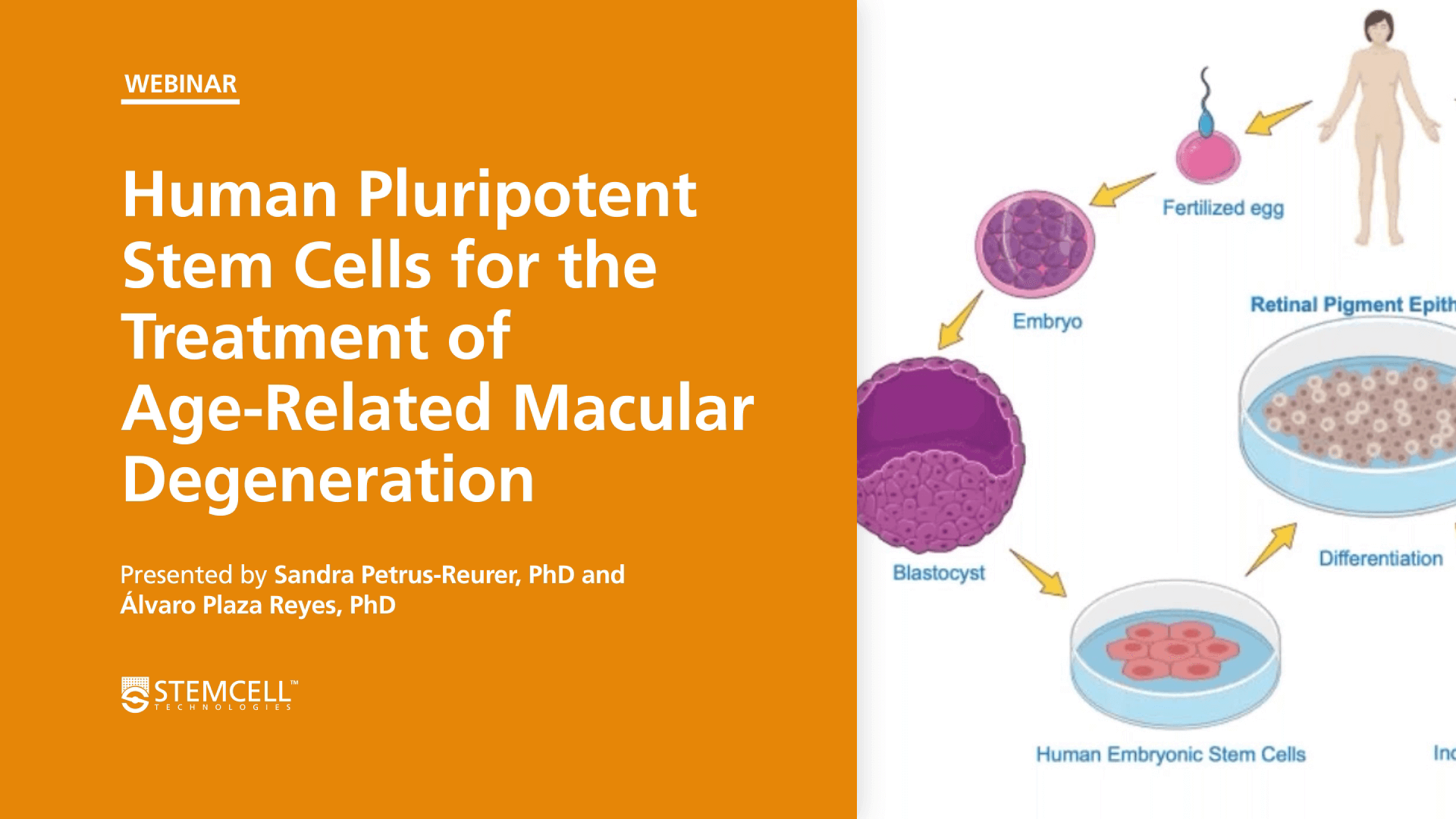 Human Pluripotent Stem Cells for the Treatment of Age-Related Macular Degeneration and Compliance Considerations for Clinical-Grade iPSCs