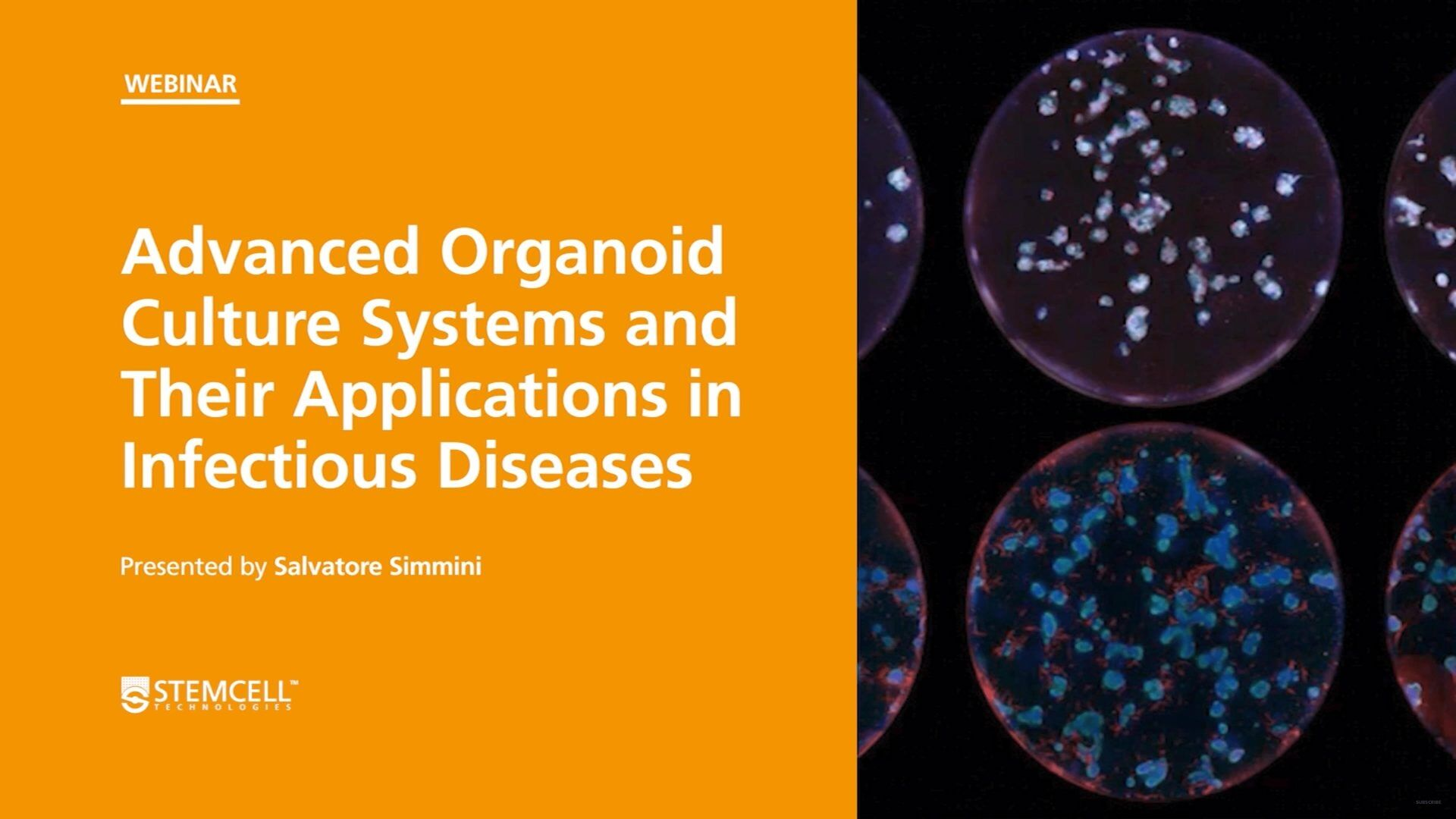 Organoid Mini-Symposium: Advanced Organoid Culture Systems and Their Applications in Infectious Diseases
