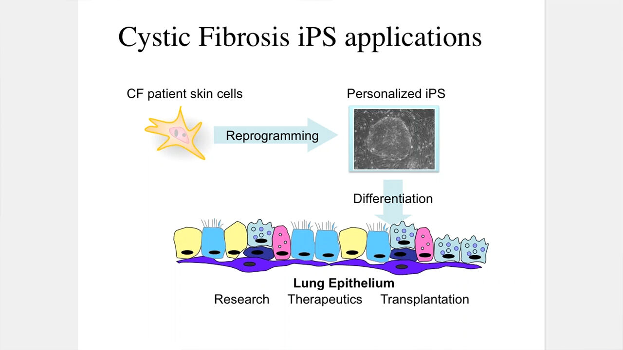 Making Lung Cells from Pluripotent Stem Cells: Disease Modeling and Future Therapies