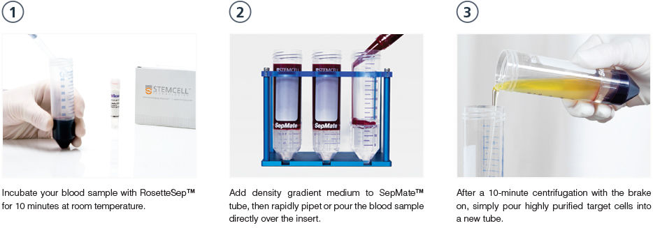 Combining SepMate™ and RosetteSep™ to isolate cells from whole blood