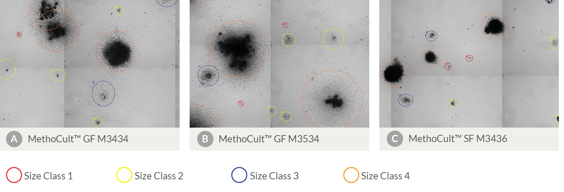 Automated CFU counter, STEMvision™, images and analyses mouse CFU colonies