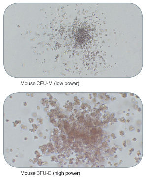 Examples of Colonies Derived from Mouse Hematopoietic Progenitors