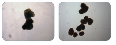 Examples of Colonies Derived from BFU-E in MethoCult™ H4034 Optimum