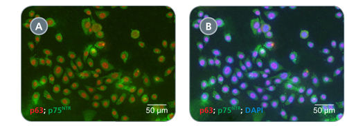 HBECs Cultured in PneumaCult™-Ex Exhibit Uniform Expression of Basal Cell Markers