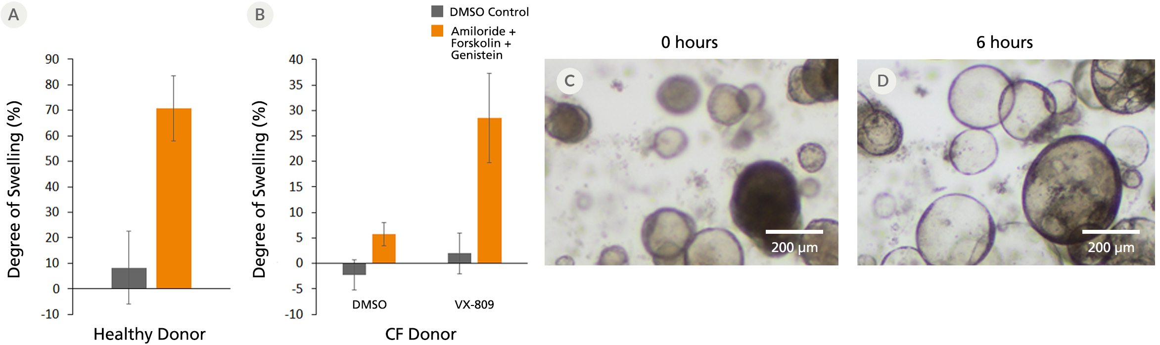 Comparison of Forskolin-treated airway organoids derived from healthy donors and CF donors.