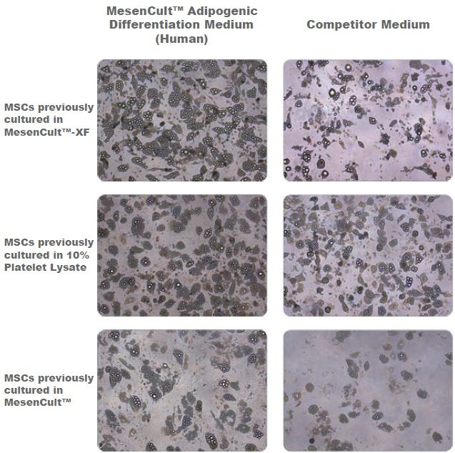 Adipogenic Differentiation of Human Bone Marrow-Derived MSCs