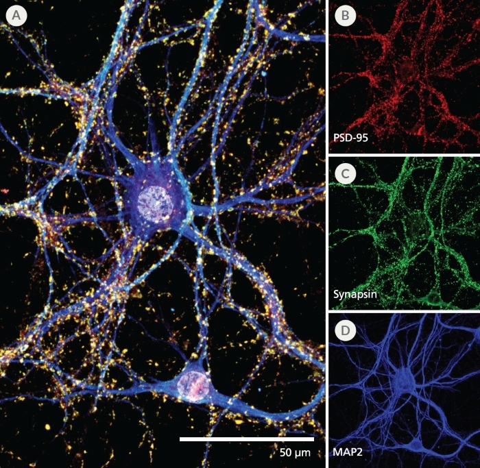 Neurite Outgrowth of Primary Neurons Cultured in NeuroCult™ SM1 and TSFM for 7 and 21 Days