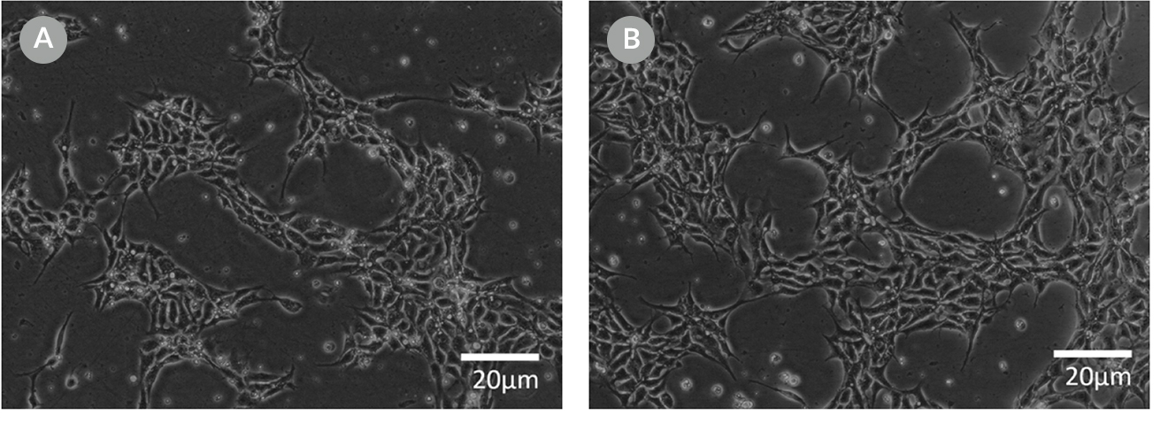 Cell morphology images of ES cells plated in  mTeSR™1 and mTeSR™ Plus and supplemented with CloneR™ immediately following RNP electroporation.