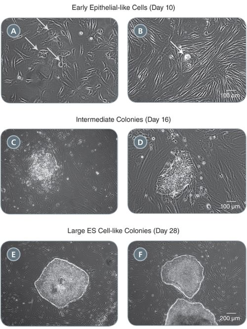 Morphology of Representative iPS Cell Colonies Arising During the Induction Period in TeSR™-E7™