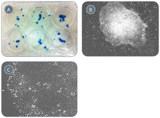 Generation of iPS Cells From 1mL of Peripheral Blood
