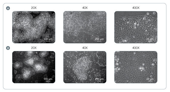 Normal Human ES and iPS Cell Morphology is Observed in TeSR™-E8™ Cultures