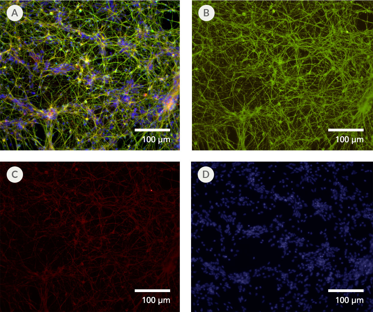 Forebrain-Type Neurons Are Generated from Neural Progenitor Cells After Culture in STEMdiff™ SMADi Neural Induction Kit and STEMdiff™ Forebrain Neuron Differentiation and Maturation Kits