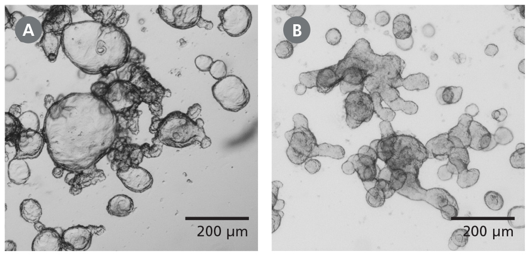 Differentiated Human Intestinal Organoids Display a Budded Morphology