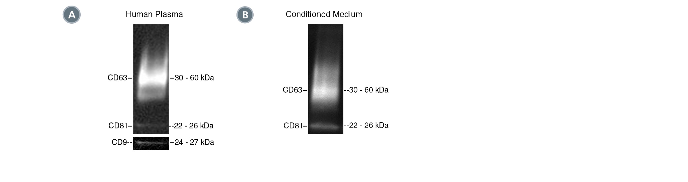 Postive isolation of EVs with the CD63 tetraspanin marker from human plasma and MSC-conditioned medium.