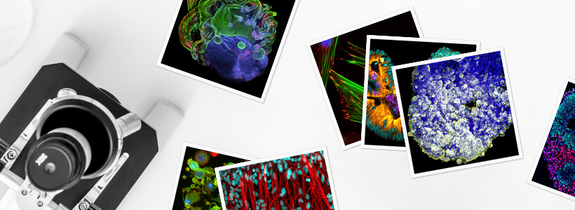 Microscopy images of pluripotent stem cells (PSCs) and PSC-derived cells for the #StemCellfie contest