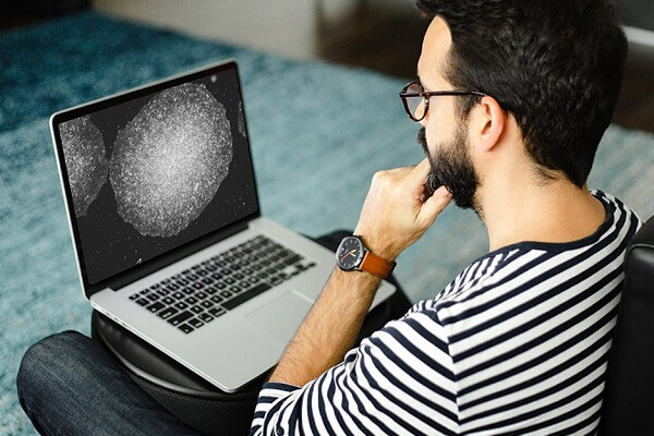 A researcher observes a pluripotent stem cell on his laptop