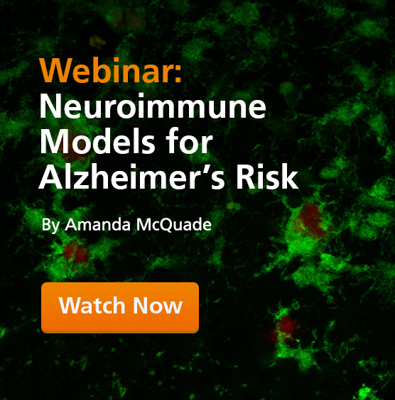 Human iPSC-derived microglia surrounding amyloid beta plaques that are Alzheimer's pathology